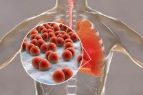 BPCO: un lien entre les fibrocytes et la détérioration de la paroi bronchique