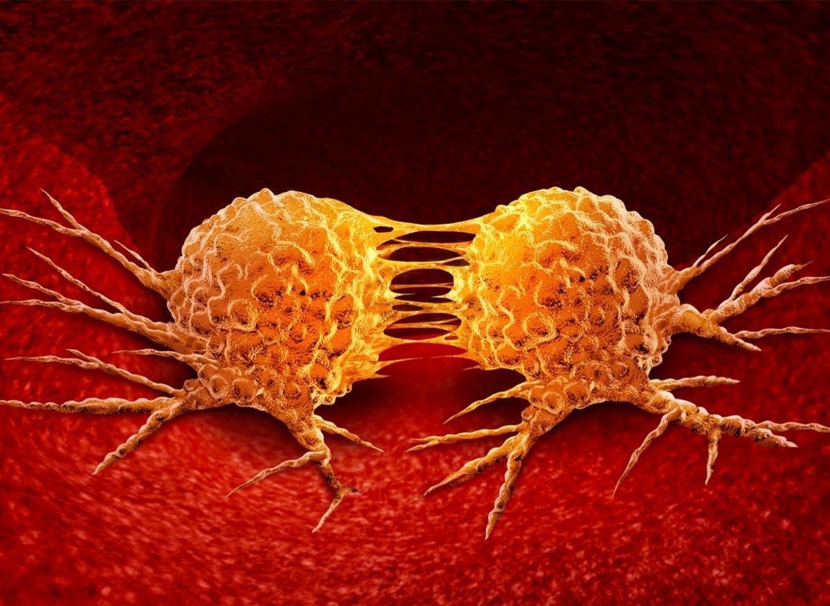 Métastases : elles partageraient des origines génétiques communes
