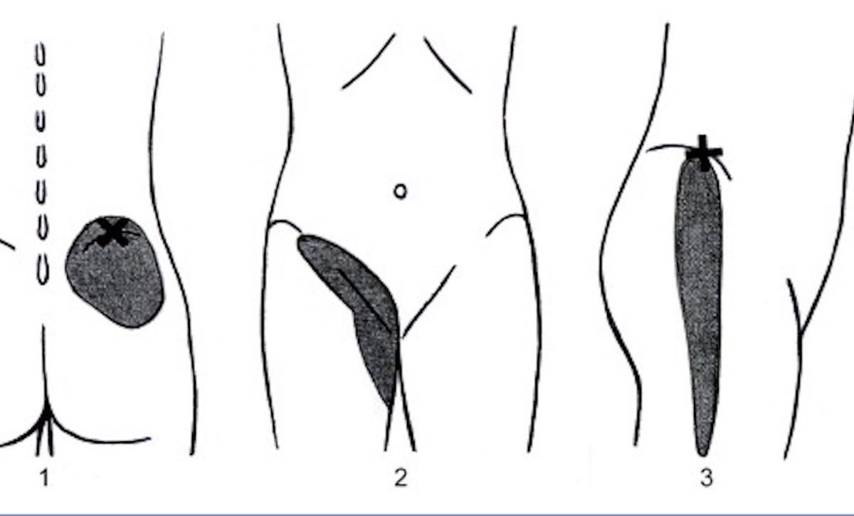 Syndrome de la charnière dorsolombaire : une douleur rachidienne très atypique
