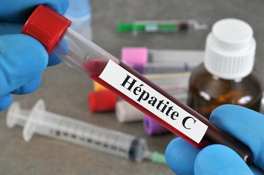 Carcinome hépatocellulaire : impact positif de l'éradication du VHC