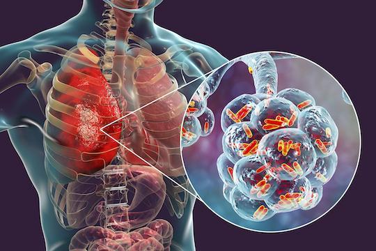 Covid-19 : les formes graves auraient une maladie vasculaire, virale et inflammatoire