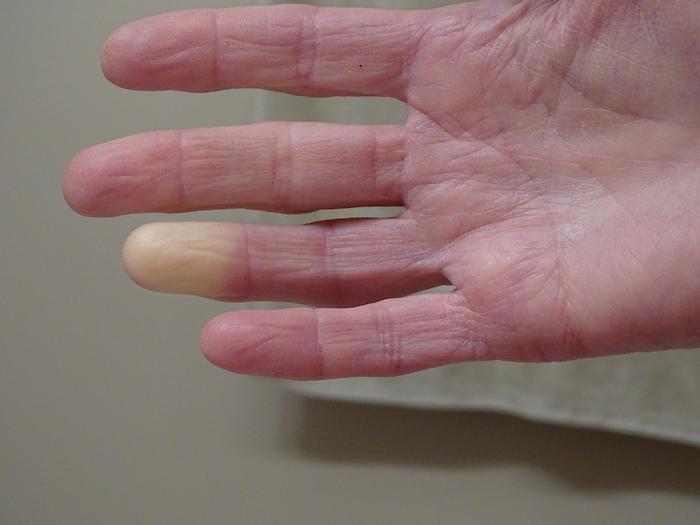 Sclérodermie systémique : la progression de la fibrose pulmonaire peut être freinée