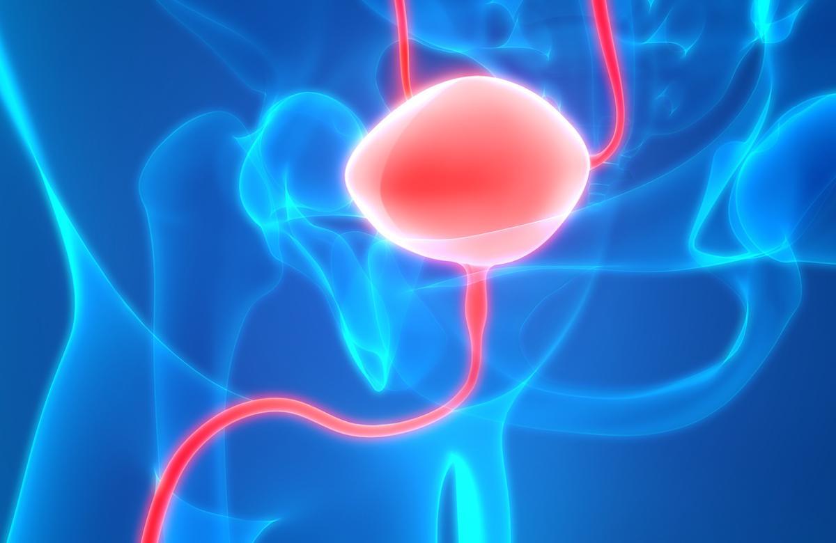 Cancers urothéliaux : les promesses de l'immunothérapie en adjuvant