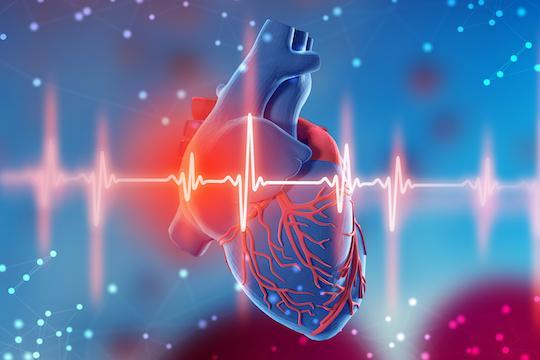 STEMI : moindre mortalité cardiovasculaire en cas de revascularisation complète