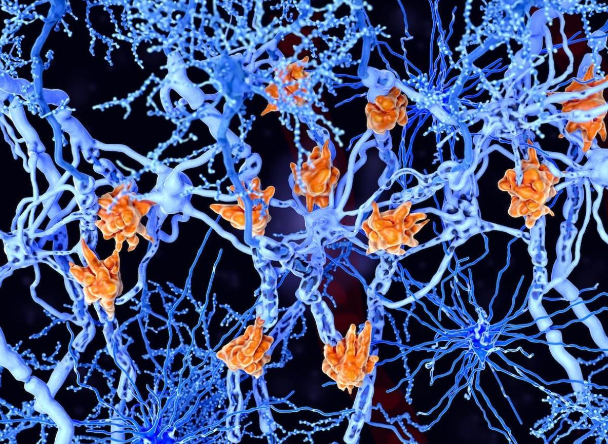 Sclérose en plaques : des signes neurologiques bien avant le diagnostic