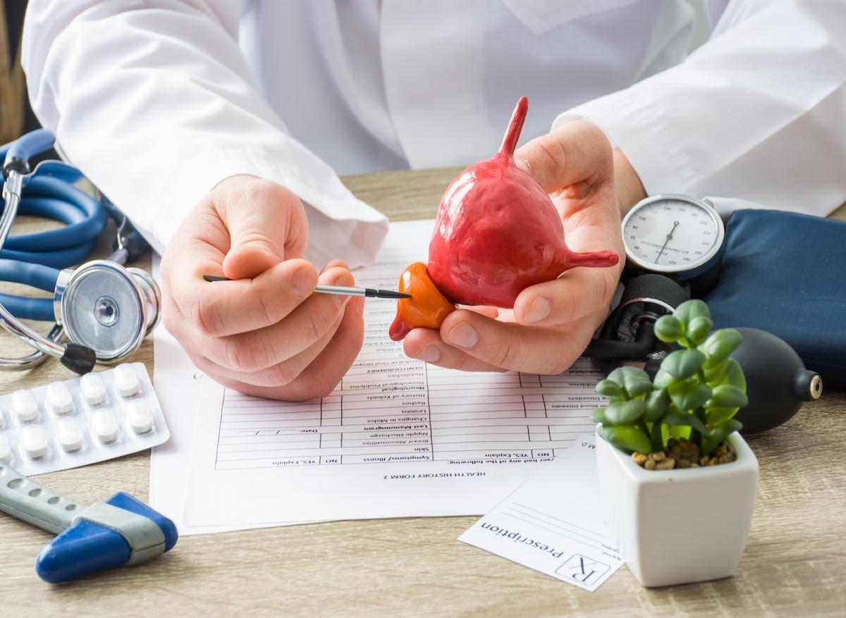 Syndrome de Lynch : il faut dépister un cancer de la prostate dès 40 ans !