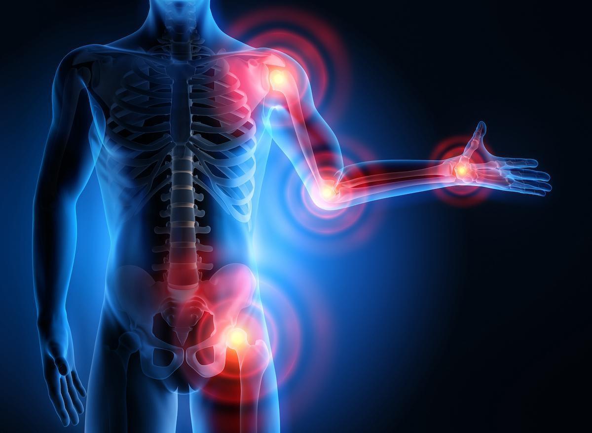 Polyarthrite rhumatoïde : cibler le microbiote ne serait pas sans effet