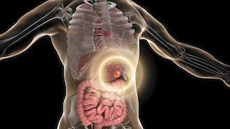 Carcinoses péritonéales d'origine gastrique : CHIP ou pas, après chirurgie cytoréductive ?