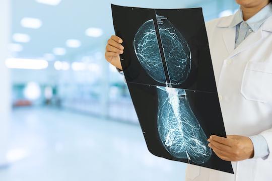 Cancer du sein HER2 et double blocage : vers une désescalade thérapeutique