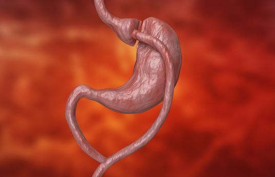 Chirurgie bariatrique : récidive plus fréquente du diabète après une sleeve