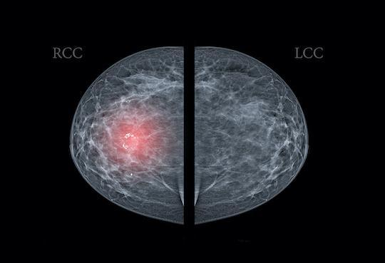 Cancer du sein : pas d'amélioration de l'observance de l'hormonothérapie adjuvante avec des SMS
