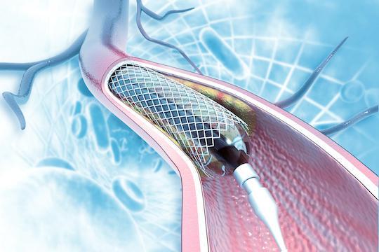 Sténoses du tronc commun : stenting et pontage font jeu égal à long terme