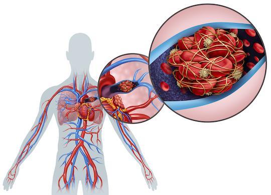 Covid-19 et poumon : fréquence particulière de l'atteinte vasculaire et thrombotique