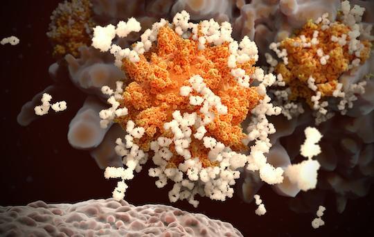 Covid-19 : rôle-clé du GM-CSF dans le syndrome hyper-inflammatoire qui conduit au SDRA