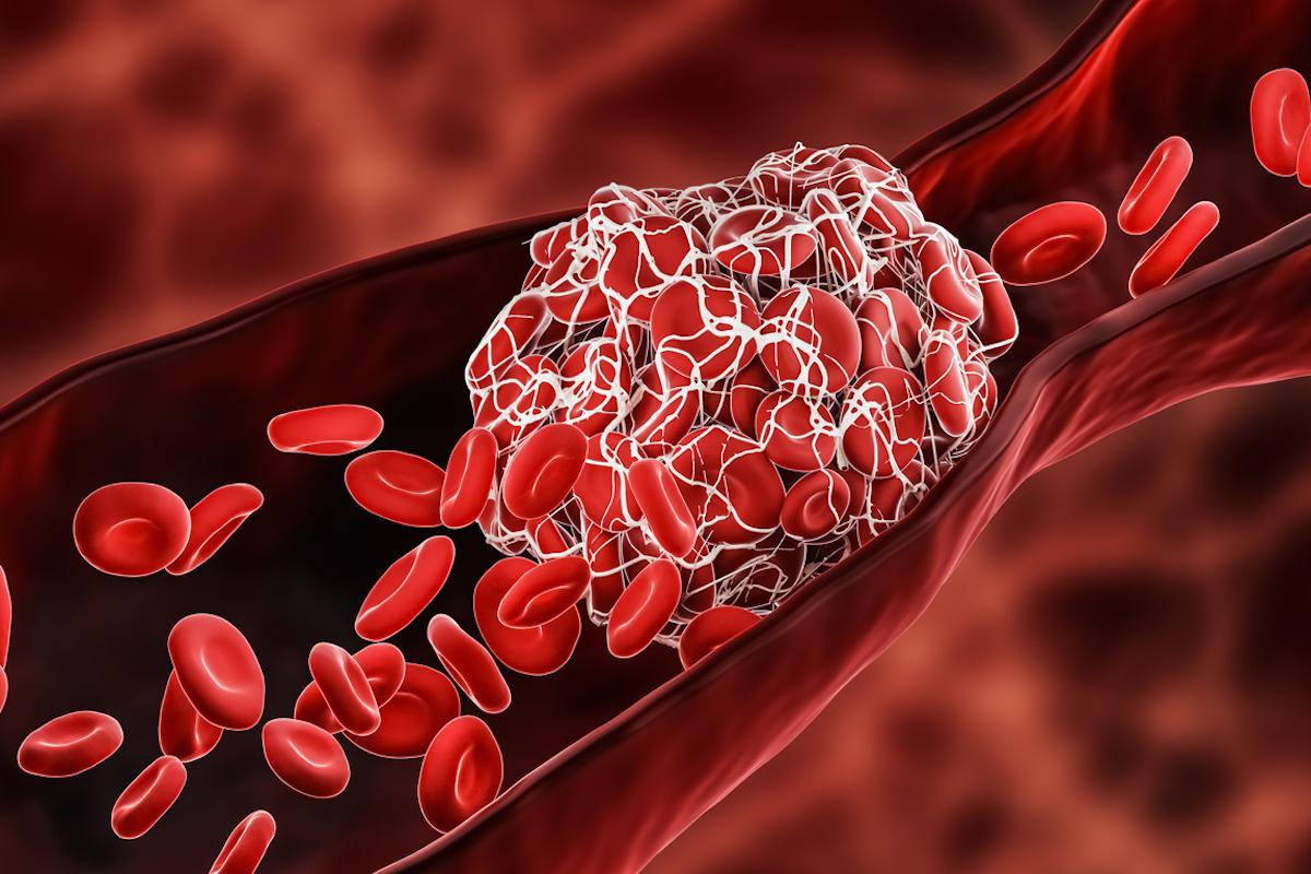 Covid-19 et prévention des thromboses : la dose anticoagulante dépend de la sévérité