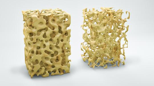 Ostéoporose : moindre efficacité d'un agent anabolique après antirésorbeurs