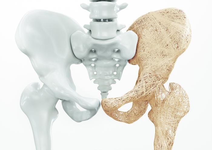 Ostéoporose : les thiazidiques réduisent les fractures même en cas d'Alzheimer