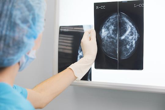 Cancer du sein : l'hormonothérapie protègerait du risque de démence