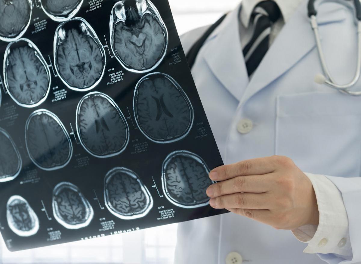 Covid-19 : des problèmes neurologiques, même dans les formes bénignes