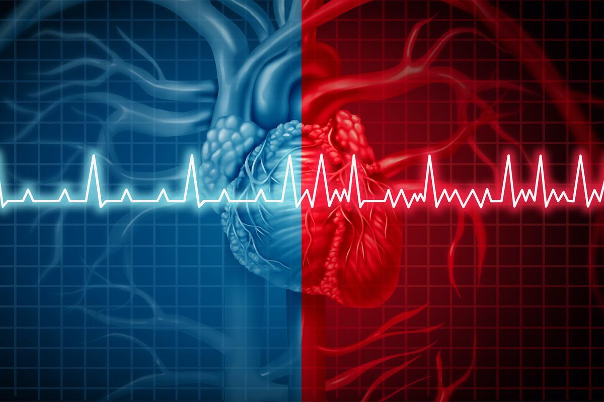 Fibrillation atriale : les nouveautés des recommandations ESC 2020