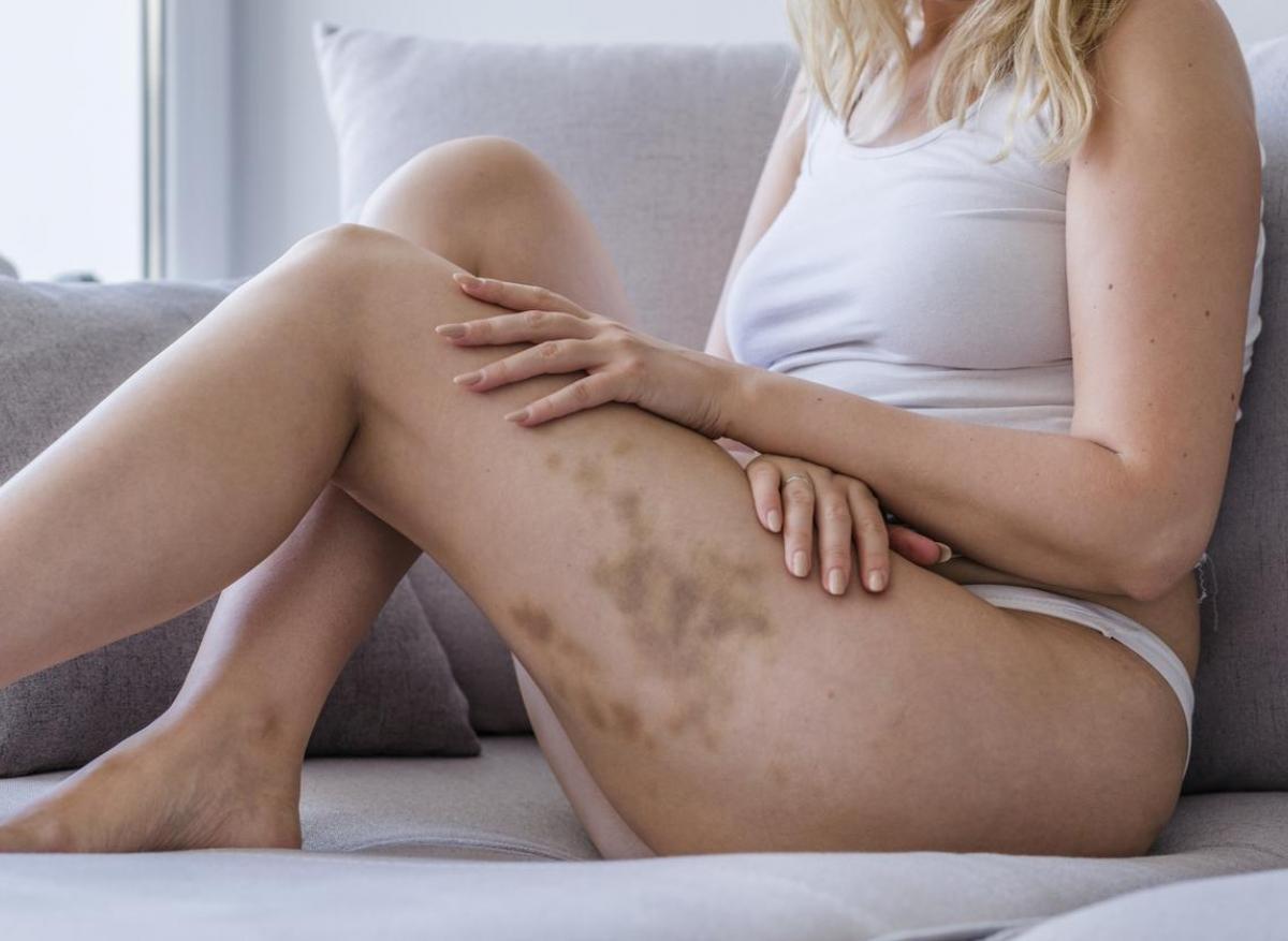Violences conjugales : des médecins veulent améliorer le dépistage