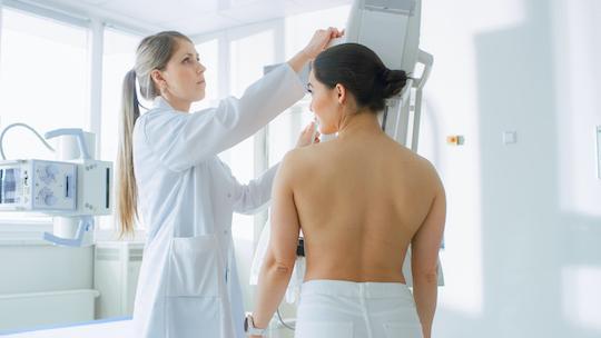 Cancer du sein RH+ / HER2- :  le choix du meilleur agent antihormonal reste ouvert