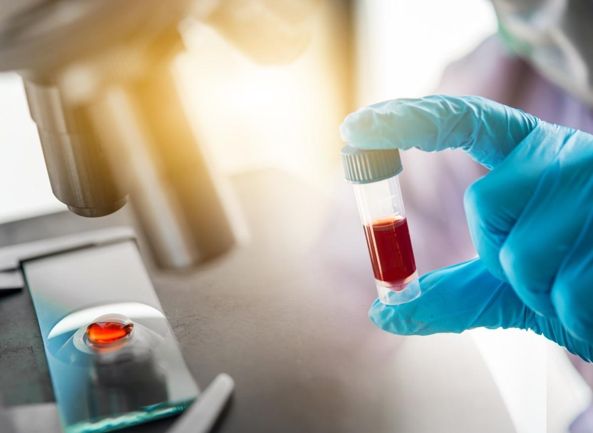 Cancer de la prostate : des faux positifs avec la biopsie liquide