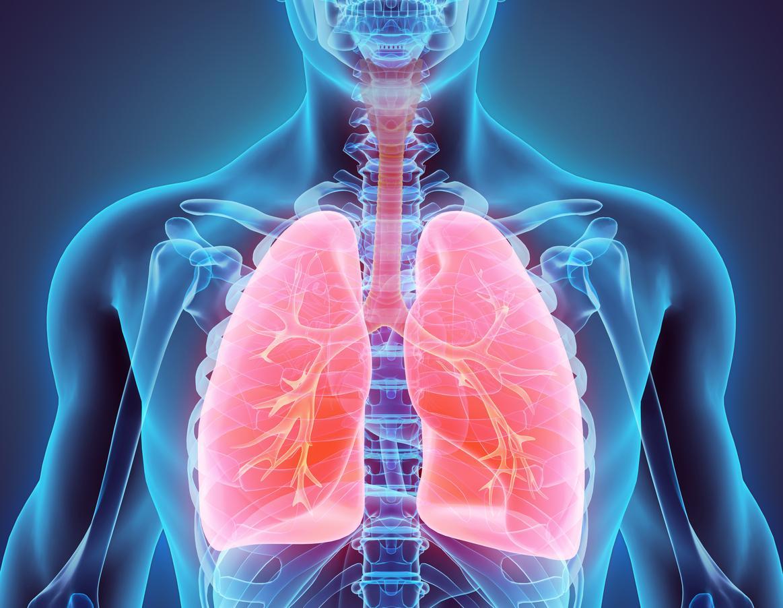 COVID 19 : pas plus d'exacerbations chez les asthmatiques COVID 19 +
