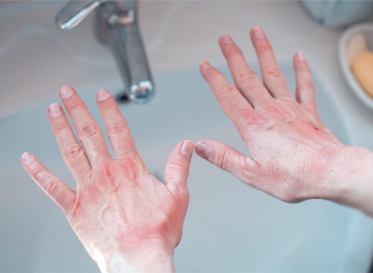 Gestes barrières et gel hydroalcoolique : flambée de dermatites des mains