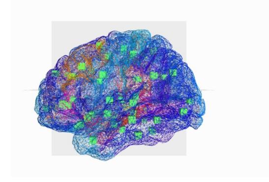 Epilepsie : la lamotrigine peut être substituée sans risque