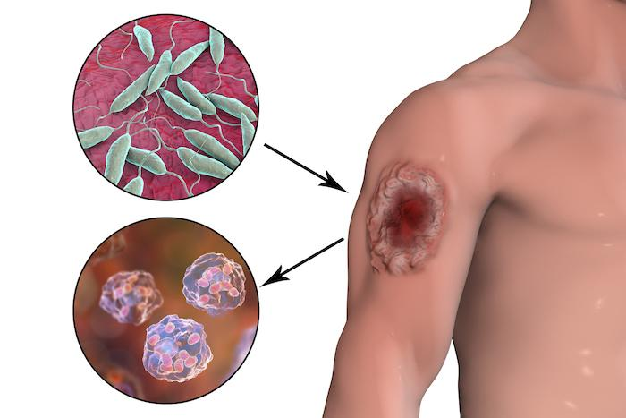 Leishmaniose : les méthodes naturelles fonctionnent et pourraient éviter le recours aux médicaments