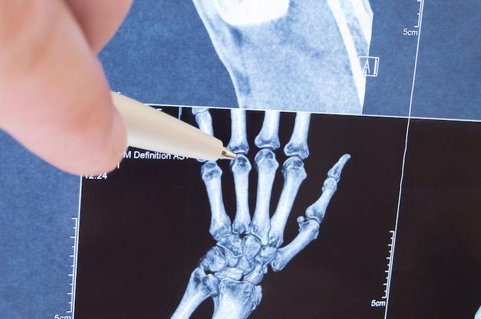 PR : le traitement précoce et intensif réduit la mortalité et les prothèses