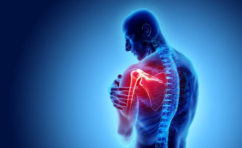 Epaule : les risques de la chirurgie prothétique plus élevés que prévu