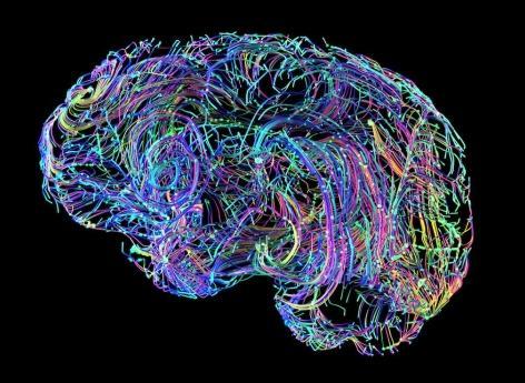 Alzheimer : un défaut d'épuration des cellules cérébrales