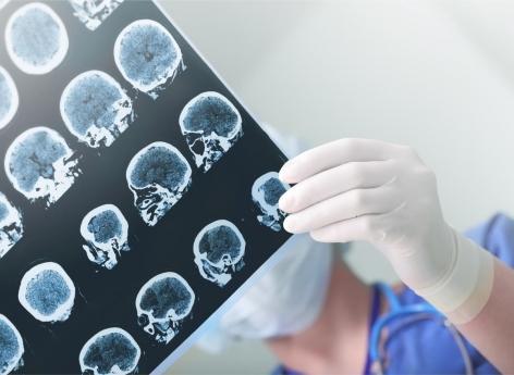 Alzheimer : un déficit d'activité des cellules immunitaires du cerveau expliquerait la maladie