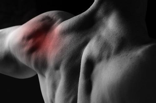 Epaule de conflit : bénéfice modeste de la chirurgie