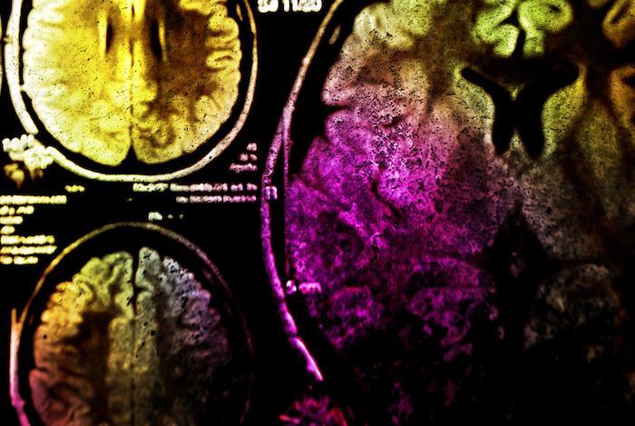 Cerveau : un homme se fait retirer une tumeur cérébrale de 2 Kgs