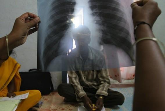 Tuberculoses multirésistantes : accès limité aux dernières thérapies