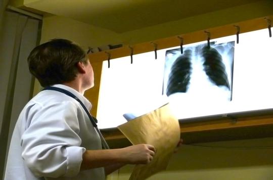 Cancer bronchique muté : meilleure survie globale avec les TKI
