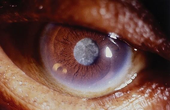 Cataracte : intérêt potentiel de la vitamine C