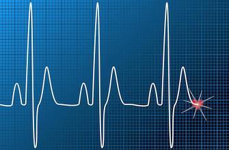 Fibrillation atriale : pas de bénéfice de l'aspirine au long cours après ablation