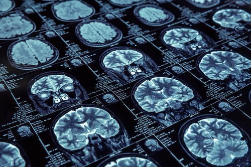 Alzheimer : la barrière hémato-encéphalique serait poreuse très tôt