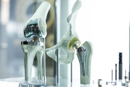 Prothèse du genou connectée : une première mondiale est Française