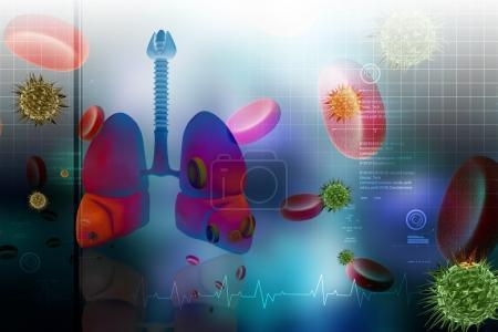 CBNPC : radiothérapie et nivolumab font mieux que nivo seul