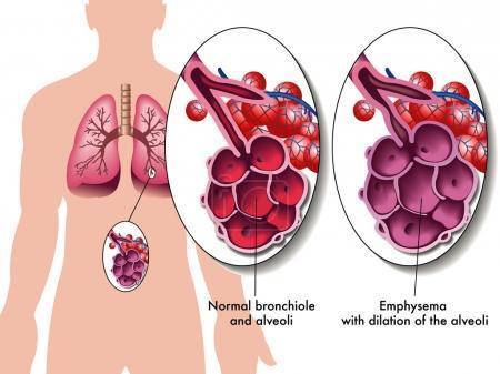 Emphysème : les résultats à 2 ans des coïls endobronchiques sont encourageants