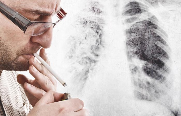 Cancer du poumon localement étendu : les vrais espoirs de l'immunothérapie