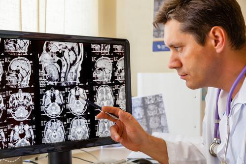 Migraine : une association très forte avec les dissections des artères cervicales