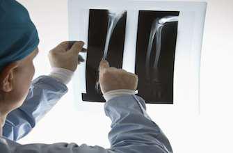 Ostéoporose : intérêt potentiel d'un nouveau traitement ostéoformateur