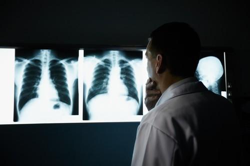 Cancer du poumon : l'immunothérapie efficace en première ligne