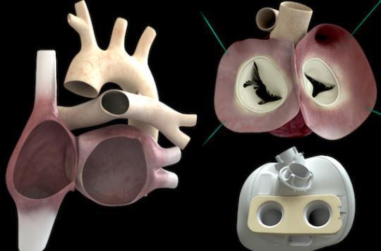 Carmat : implantation du coeur artificiel au Kazakhstan